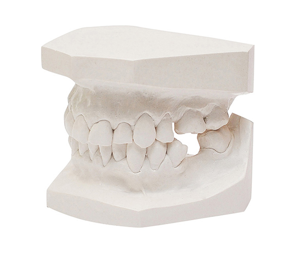 Orthodontic Study Model